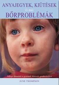 June Thompson: Anyajegyek, kiütések és más bőrproblémák - Átfogó útmutató a gyermek bőrének gondozásához -  (Könyv)